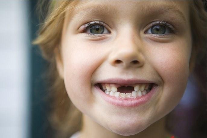 Почему нет зубов у ребенка: 5 основных причин позднего прорезывания зубов у грудничка. Схема и порядок прорезывания молочных зубов у детей по месяцам: описание, фото
