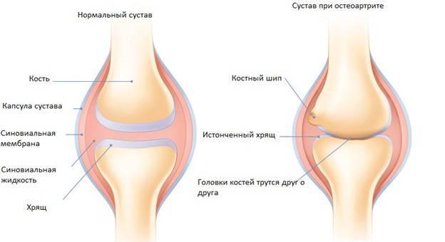 Изображение - Что нужно есть чтобы не болели суставы 2498_1114_1499424361_1