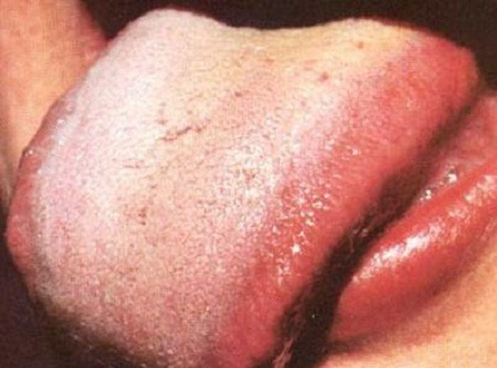 Как узнать какой орган болит по языку?