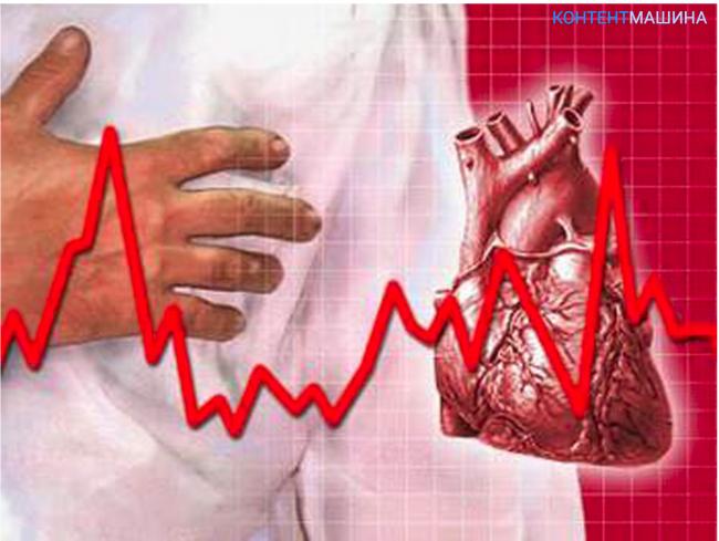 Аритмия по утрам: причины и способы лечения